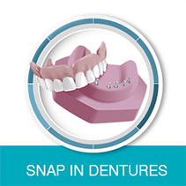 Snap in dentures